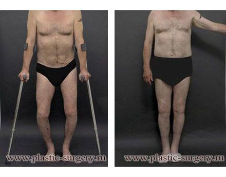 Протезирования коленных суставов в перми травма мышцу кисти в лучезапястном суставе