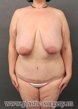 абдоминопластика до и после в тюмени