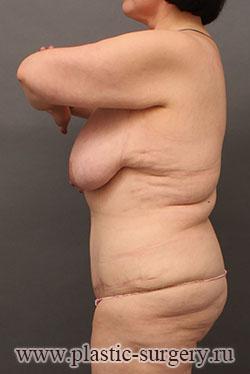 абдоминопластика до и после в перми