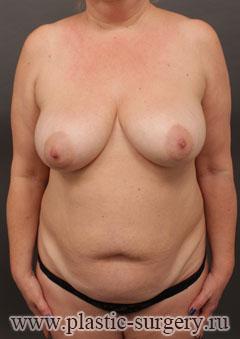 абдоминопластика фото