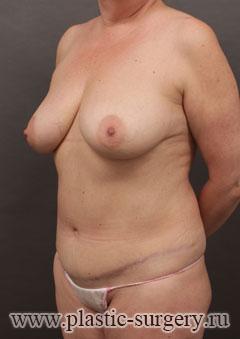 абдоминопластика до и после