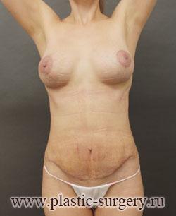 Подтяжка грудных желез с имплантами цена в спб