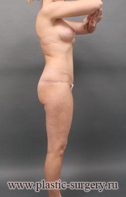 увеличение грудных желез в тюмени
