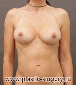 увеличение груди отзывы в тюмени