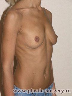 увеличение размера груди