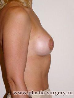 увеличение груди клиника