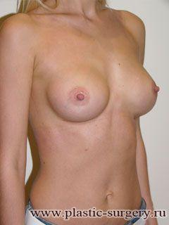 увеличение груди в москве