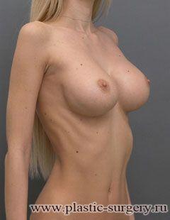 увеличение груди стоимость