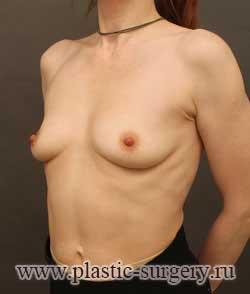 увеличение груди цена в челябинске