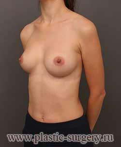увеличение грудных желез цена в челябинске