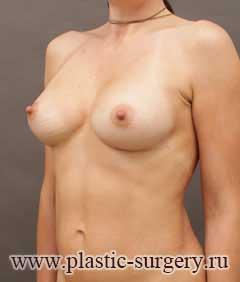 увеличение груди цена в перми