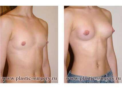 Увеличение груди минимальная цена
