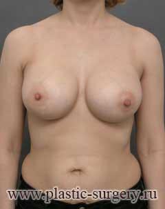 увеличение груди в екатеринбурге фото
