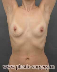 увеличение груди в новосибирске отзывы