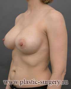 увеличение груди в казани цена