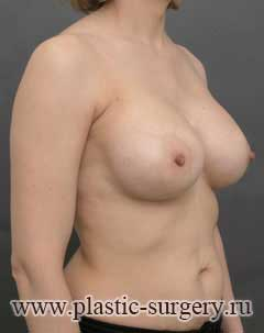 увеличение груди в омске отзывы