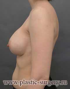 увеличение груди в челябинске фото