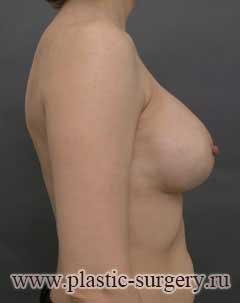 увеличение груди в уфе фото