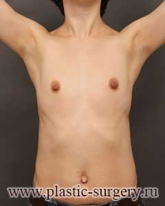 увеличение груди фото в перми