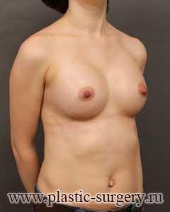 увеличение груди фото в челябинске