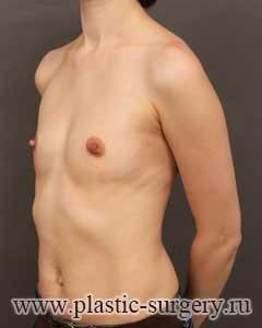 пластика груди фото в тюмени