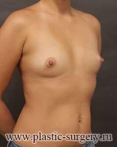 увеличение груди отзывы пермь