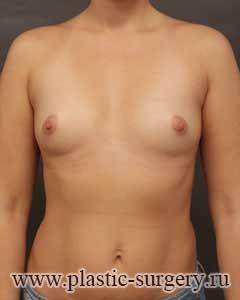 увеличение груди фото в казани