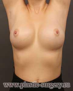 увеличение груди фото в уфе