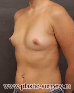 увеличение груди отзывы челябинск