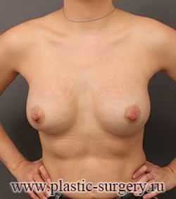 пластика груди операция в екатеринбурге