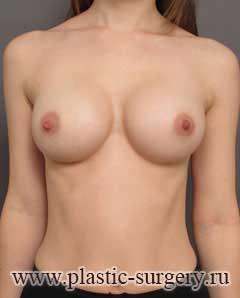 увеличение груди отзывы