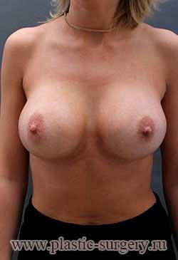сколько стоит пластика груди в екатеринбурге