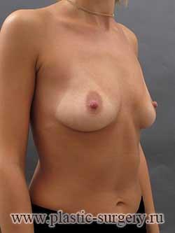 сколько стоит пластика груди в тюмени
