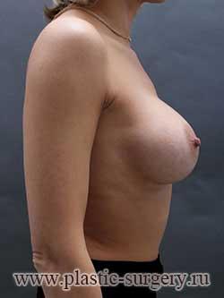 сколько стоит пластика груди в перми