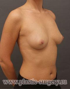 увеличение груди до и после