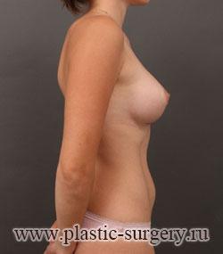 увеличение груди цена в саратове