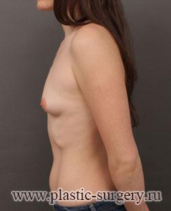 увеличение груди цена в омске