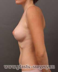 увеличение груди цена в оренбурге