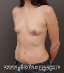 увеличение груди цена в ханты-мансийске