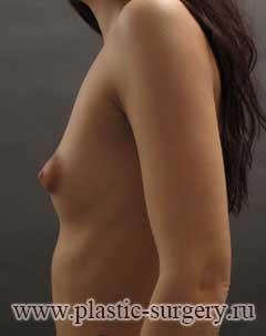 увеличение груди цена в тюмени