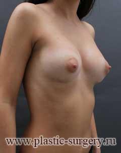 пластика груди в перми