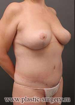 уменьшение груди цена в екатеринбурге