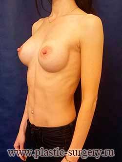 увеличение грудных желез цена в перми