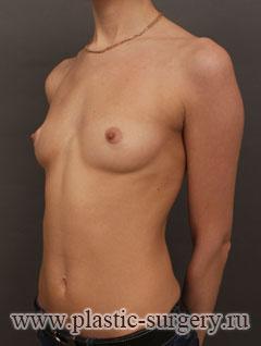 увеличение груди фото