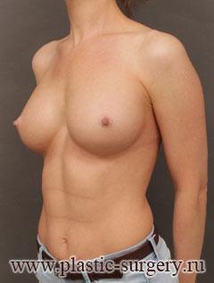 увеличение груди результат