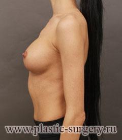 увеличение груди клиники в новосибирске