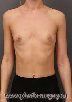 увеличение груди фото в оренбурге