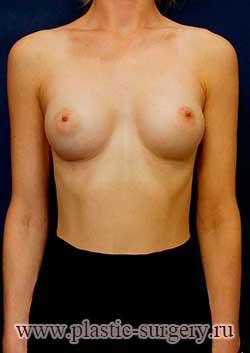 увеличение груди фото в омске
