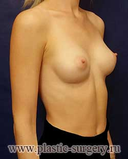 увеличение груди фото в самаре