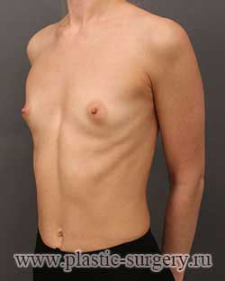 увеличение груди фото в ханты-мансийске